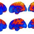 Мозок астронавтів змінює форму після перебування в космосі